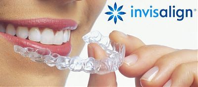 Invisalign braces Cork