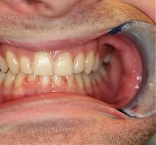 Six Month Smiles After